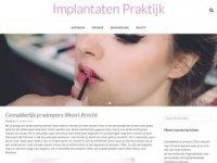 Implantaten praktijk